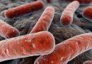 Fenomena Tasbih pada TBC Kelenjar