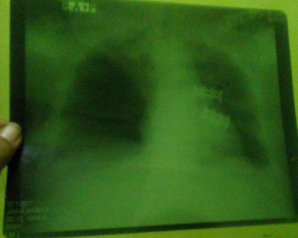 Foto tulang rusuk dan tulang bahu bagian depan